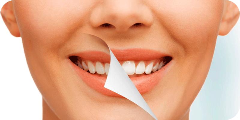 laserteeth